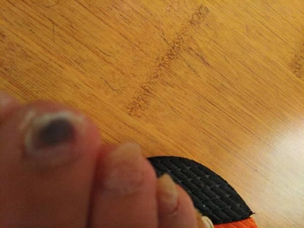 脚趾甲发黑是不是淤血所致_360问答