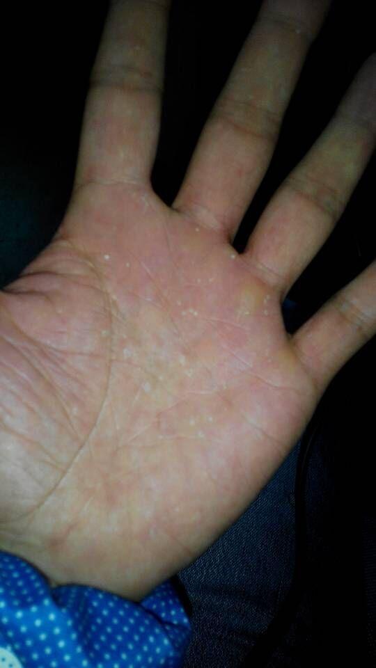 手掌起红点很痒,又肿是怎么回事图片