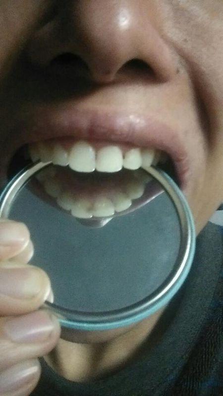 门牙后面发黑,确定是蛀牙了,不补牙行吗?能控