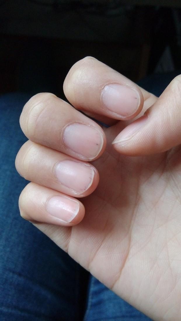 我想知道我手指甲尖有这种黑色深红色的短竖纹是什么原因
