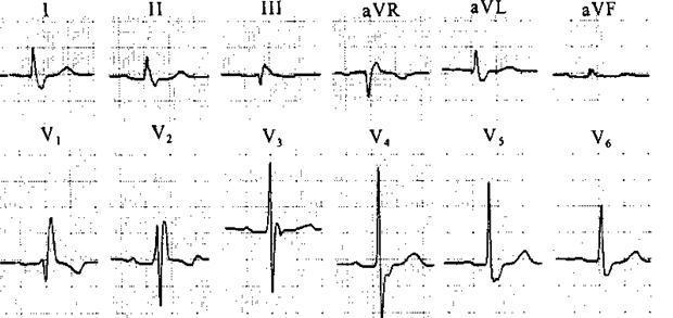 心电图st段抬高无症状