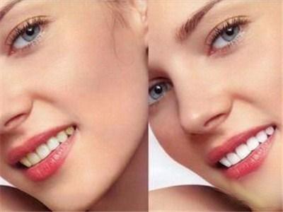 纳米的二氧化硅等为主体的美白剂快速渗透到牙齿表面
