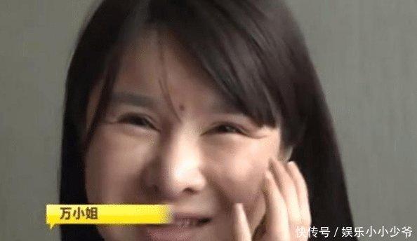 花27万找韩国医生整容,假体上移到脖子,女子我还没嫁人啊!
