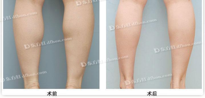 瘦腿的方法图解