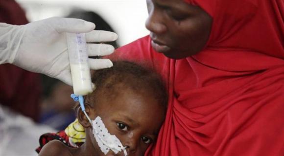 尼日利亚难民饥荒 一周内20个孩子被活活饿死