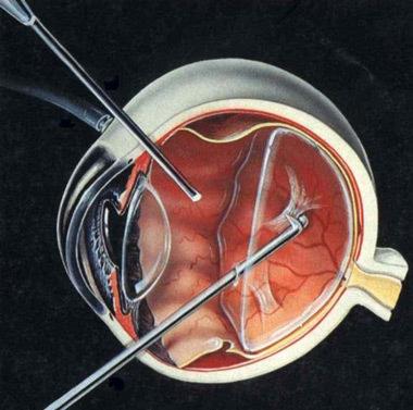 取硅油手术的步骤图片