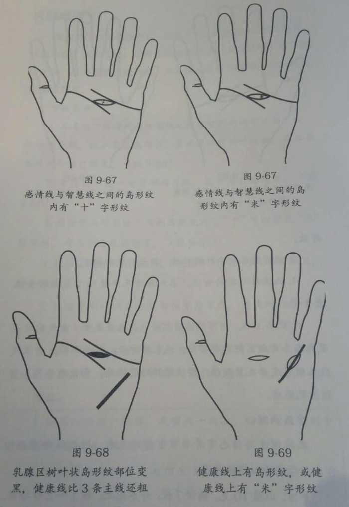 手绘皮肤结构图手