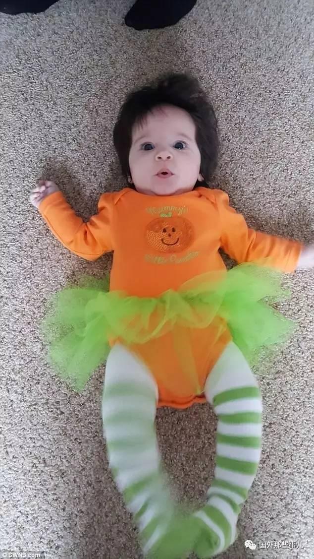 """可爱宝宝出生时候头发太多吓到了医生,现在却常常被""""恶搞"""""""