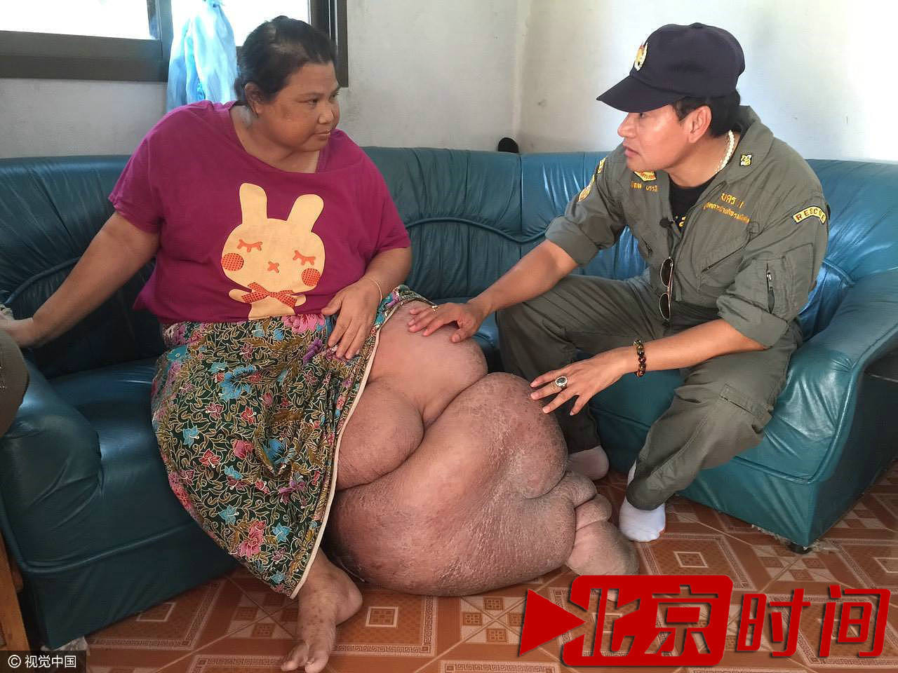 【转】北京时间     泰国妇女患怪病左腿重达51斤 被丈夫无情抛弃 - 妙康居士 - 妙康居士~晴樵雪读的博客
