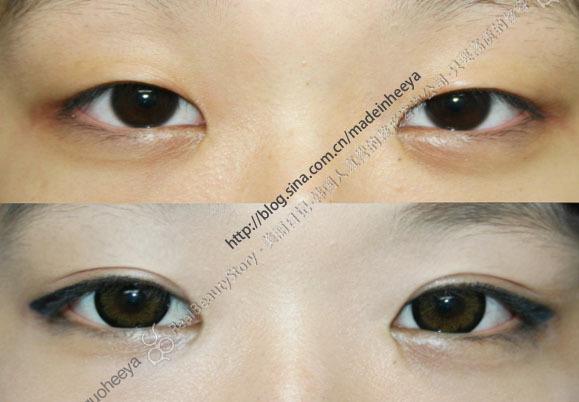 1.平行型双眼皮跟上眼睑睑缘是基本平行的