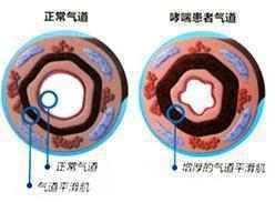 如何预防哮喘发作? 学会防比治更重要! - 周公乐 - xinhua8848 的博客