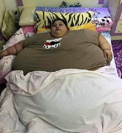 埃及女子重1200斤命悬一线 医生担心极了! - 高山松 - gaoshansong.good 的博客