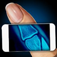 模拟器X射线手指笑话