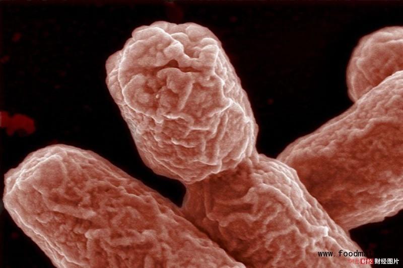 大肠杆�9a�[^Y��z_肠出血性大肠杆菌