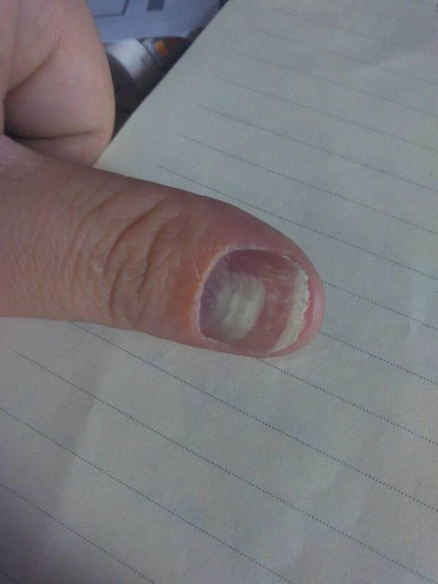 大拇指出现 这种情况,发白,表面凹凸不平 大拇